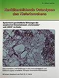 Kavitätenbildende Osteolysen des Kiefernknochens: Systemisch-ganzheitliche Wirkungen der aseptischen...