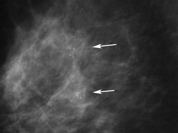 Mammographiebild mit Mikroverkalkungen eines Brustkrebs