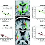 Amyotrophe-Lateralsklerose-Studie