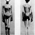 Anorexia-1900