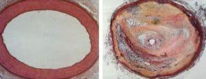 Blutdruckmittel eliminiert Atherosklerose-Plaques - Dr..