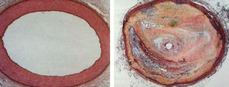 Atherosklerose - Nesselstyn4