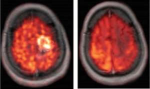 OP + DCA führt zur Dauerremission bei Glioblastom (Studie Michalekis 2010)