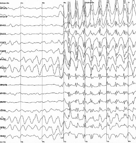 EEG Wikipedia Spike-waves