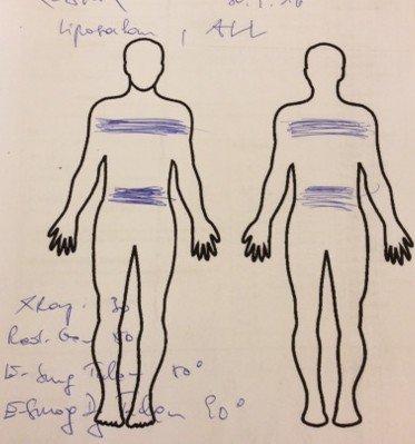 emf-patient-sarkom-usw