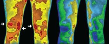 blossfüssiges Gehen auf der Erde vermindert Entzündungen