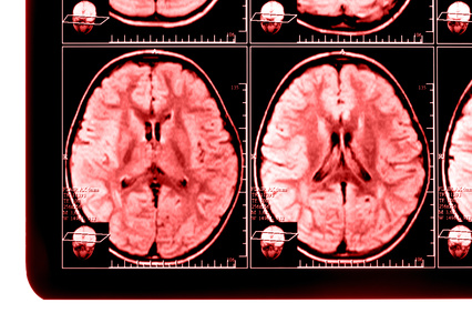 X-ray image of the brain computed tomography