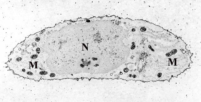 M bezeichnet die in der Knorpelzelle sichtbaren Mitochondrien. N ist der Nukleus (Zellkern) mit der Erbsubstanz