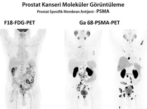 PSMA G68 PET - Bild von http://drozdogan.com/prostat-kanseri/246/prostat-kanseri-tedavisinde-yeni-goruntuleme-yontemi-galyum-68-psma-pet/