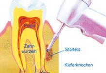 Dentalreflex, Peter Spleit, Deltlef Arms