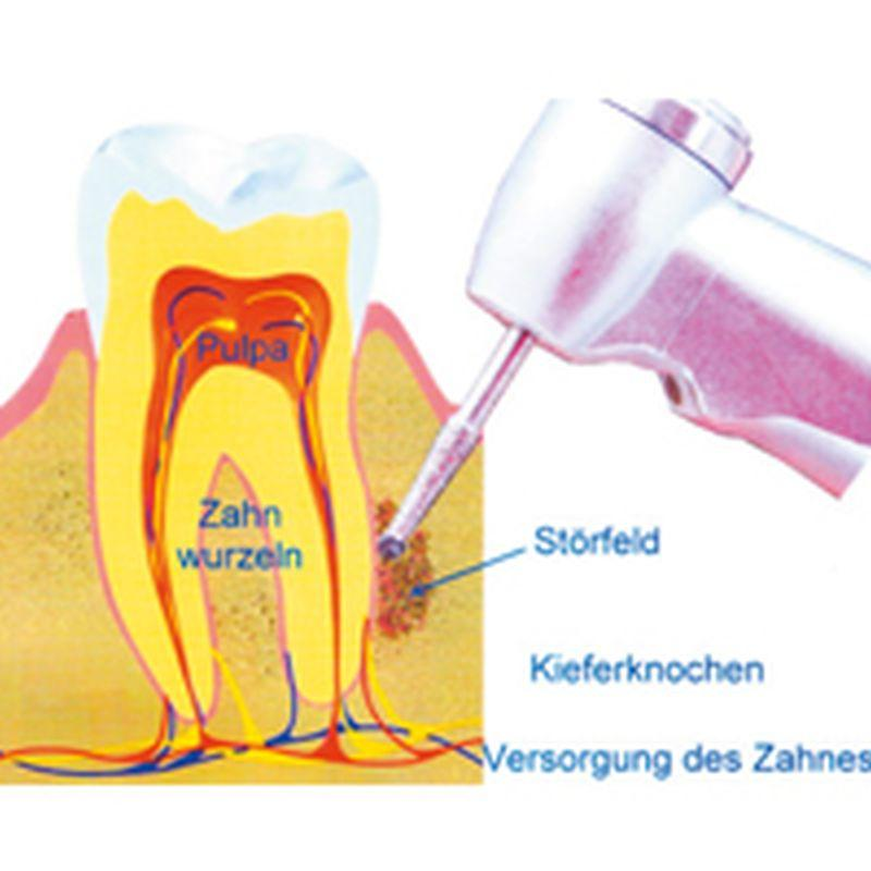 Dentalreflex, Peter Spleit, Deltlef Arms